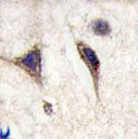 Immunohistochemistry (Formalin/PFA-fixed paraffin-embedded sections) - Tau antibody (ab75624)
