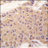 Immunohistochemistry (Formalin/PFA-fixed paraffin-embedded sections) - TGF beta 2 antibody (ab75715)
