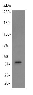Western blot - ALDOB antibody [EPR3138Y] (ab75751)