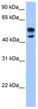 Western blot - Deformed Epidermal Autoregulatory Factor 1  antibody (ab75792)