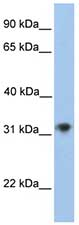Western blot - CHST13 antibody (ab75795)