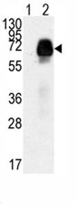 Western blot - AMHR2 antibody - Aminoterminal end (ab75845)