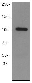 Western blot - GPCR GPR49 antibody [EPR3065Y] (ab75850)