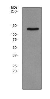 Western blot - Synaptojanin 2 antibody [EPR2062Y] (ab75880)