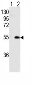 Western blot - CaMKI gamma antibody (ab75891)