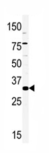 Western blot - HMX2 antibody - Carboxyterminal end (ab75894)