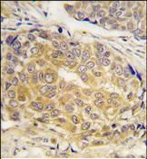 Immunohistochemistry (Formalin/PFA-fixed paraffin-embedded sections) - CBR1 antibody (ab75946)