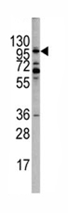Western blot - EPHA10 antibody - Aminoterminal end (ab75955)