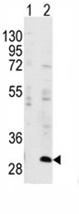 Western blot - IGFBP3 (phospho S183) antibody (ab76001)