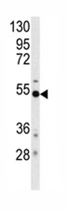 Western blot - BACE1 antibody (ab76019)