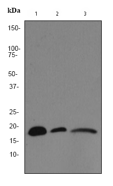 Western blot - Anti-VAMP8 antibody [EP2629Y] (ab76021)