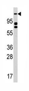 Western blot - ULK2 antibody - Aminoterminal end (ab76041)