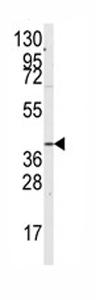 Western blot - G protein alpha 12 antibody (ab76044)