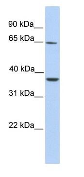Western blot - ZNF677 antibody (ab76054)
