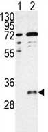 Western blot - CTDSP1 antibody (ab76099)