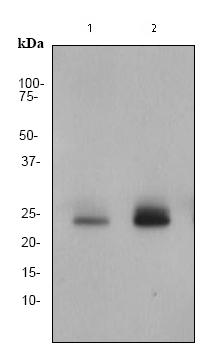 Western blot - Presenilin 1 (phospho S310) antibody [EP2001Y] (ab76131)