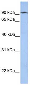 Western blot - CLPB antibody (ab76179)