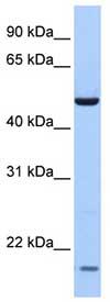 Western blot - MGC13138 antibody (ab76185)