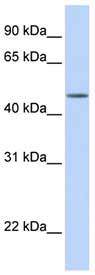 Western blot - TBL2 antibody (ab76205)