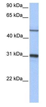 Western blot - Epoxide hydrolase antibody (ab76226)