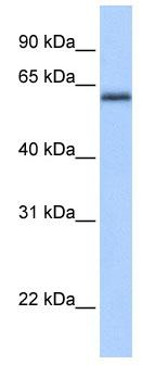 Western blot - ZNF417 antibody (ab76230)