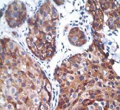 Immunohistochemistry (Formalin/PFA-fixed paraffin-embedded sections) - PTP1B (phospho S378) antibody [EP1840Y] (ab76239)