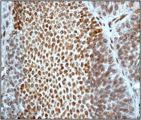 Immunohistochemistry (Formalin/PFA-fixed paraffin-embedded sections) - Anti-Histone H2B antibody [EP2327] (ab76246)