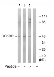 Western blot - CCKBR antibody (ab76250)