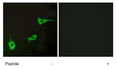 Immunocytochemistry/ Immunofluorescence - Endothelin A Receptor antibody (ab76259)