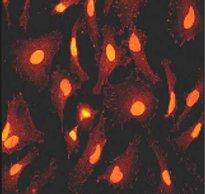 Immunocytochemistry/ Immunofluorescence - STAT3 (phospho Y705) antibody [EP2147Y] (ab76315)