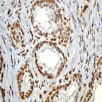 Immunohistochemistry (Formalin/PFA-fixed paraffin-embedded sections) - STAT3 (phospho Y705) antibody [EP2147Y] (ab76315)