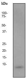 Western blot - beta Amyloid 1-40 antibody [EP1876Y] (ab76317)