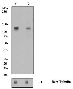 Western blot - E Cadherin (phospho S838 + S840) antibody [EP913(2)Y] (ab76319)