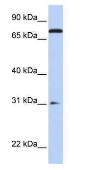 Western blot - MAP4K1 antibody (ab76379)