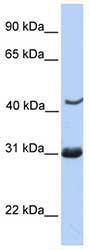 Western blot - Nup53 antibody (ab76381)