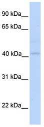 Western blot - Gasdermin like  antibody (ab76382)