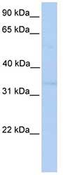 Western blot - NDE1 antibody (ab76384)