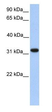 Western blot - Anti-ETFA antibody (ab76426)