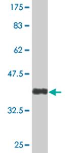 Western blot - TSPYL1 antibody (ab76440)