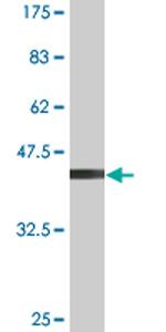 Western blot - Anti-VDAC1/Porin antibody (ab76441)