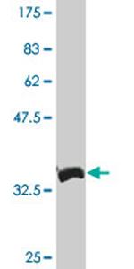 Western blot - XBP1 antibody (ab76443)