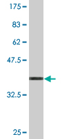 Western blot - EIF4EBP3 antibody (ab76476)