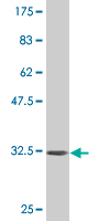 Western blot - INPP4B antibody [3F2] (ab76477)