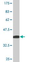 Western blot - CH25H antibody [1G8] (ab76478)