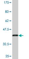 Western blot - CLINT1 antibody [1E6] (ab76482)