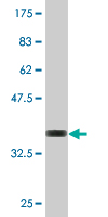Western blot - PIGQ antibody (ab76485)
