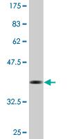 Western blot - LONP1 antibody (ab76487)