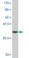 Western blot - CDY2A antibody (ab76488)