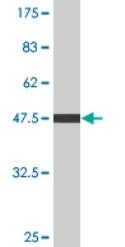 Western blot - C4 binding protein antibody [leave blank] (ab76505)