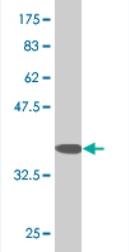 Western blot - RHOG antibody (ab76508)